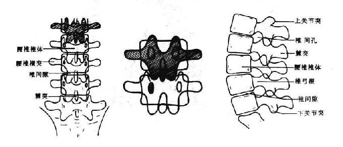 正常腰椎正侧位