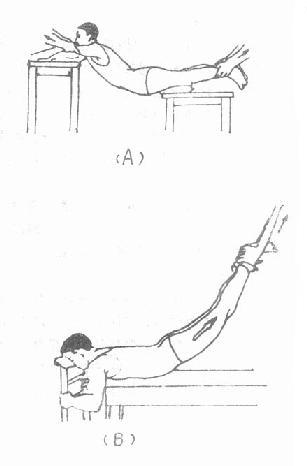 脊柱骨折闭合复位