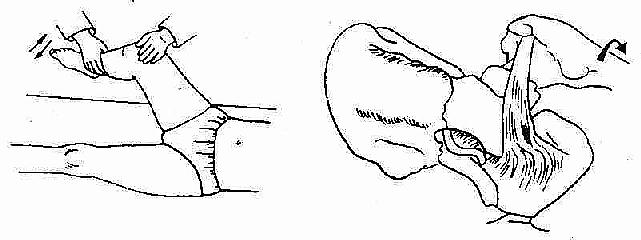 闭孔肌征的示意图