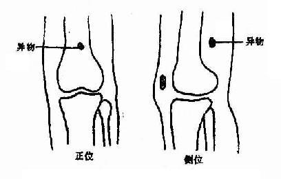 异物定位,正位及侧位摄片法