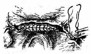 对合盆腔腹膜以覆盖粗糙面
