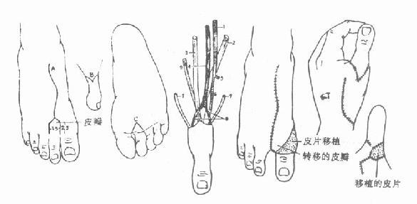 第二趾游离移植拇指再造术