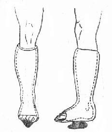 踝部韧带损伤
