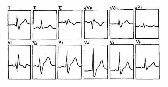 完全性右束支传导阻滞心电图