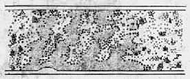 小梁间形成纤维素网,网眼中充满红细胞