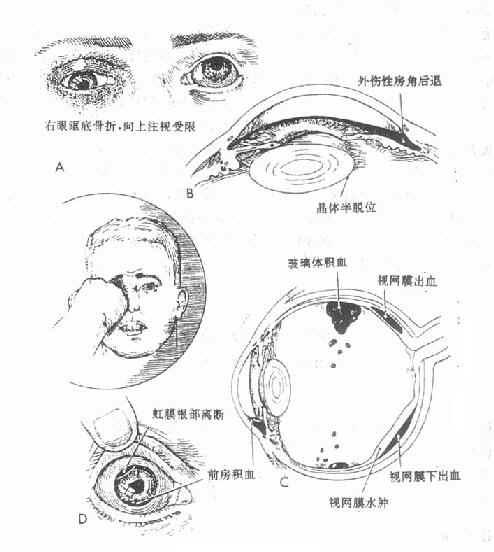 常见眼挫伤