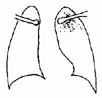 浸润型肺结核