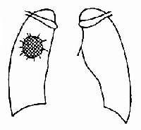 周围型肺癌正位有毛刺