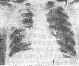 右肺化脓性肺炎之X线表现
