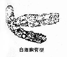 尿内各种管型