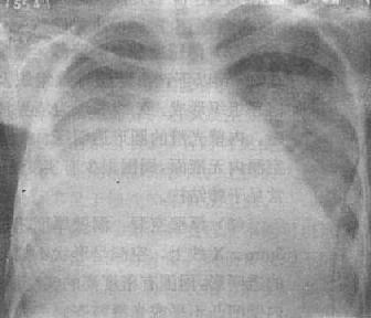 右側胸腔中量積液