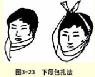 下颌三角巾包扎法