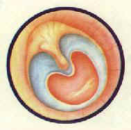 慢性化脓性中耳炎中央性大穿孔中耳粘膜充血