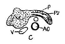 胰头癌声象图