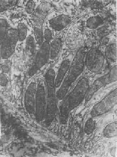 肾近曲小管上皮细胞之基底褶及其中的线粒体