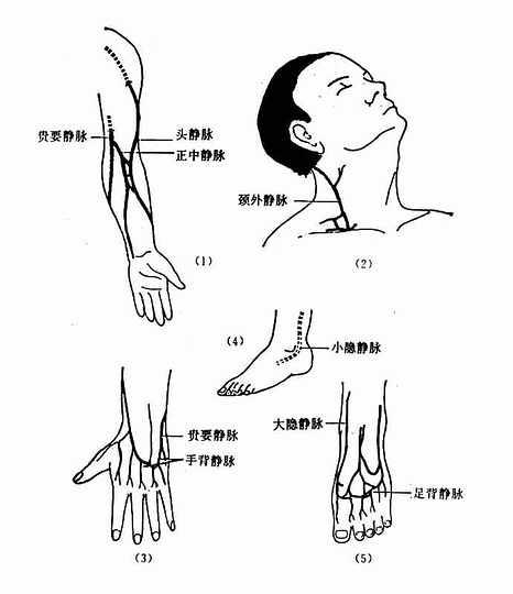静脉注射部位