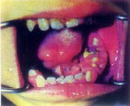 舌及口底癌(左)