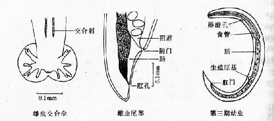 广州管圆线虫