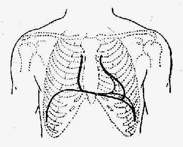 主动脉瓣关闭不全心脏浊音界示意图