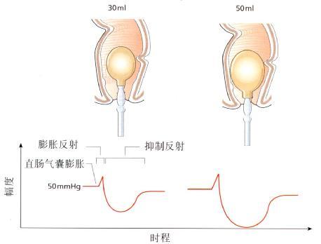 直肠肛门抑制反射