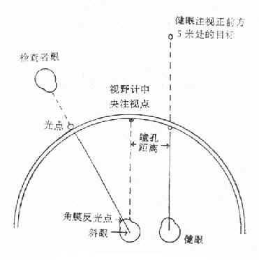 视野计测量斜视角法