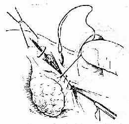 覆盖输卵管系膜粗糙面