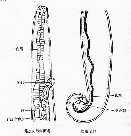 结膜吸吮线虫_寄生虫学/其他人体寄生线虫 - A+医学百科