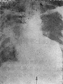 肺炎杆菌属肺炎之X线表现