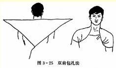 双肩三角巾包扎法