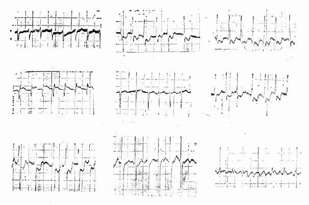 心房纤颤心电图