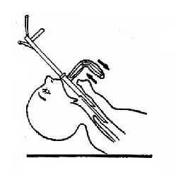 间接法导入支气管镜