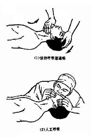 人工呼吸法