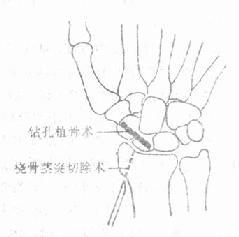 陈旧性舟骨骨折的手术治疗