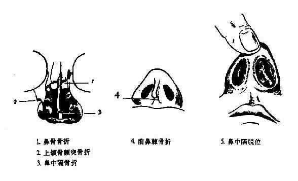鼻骨骨折及鼻中隔脱位