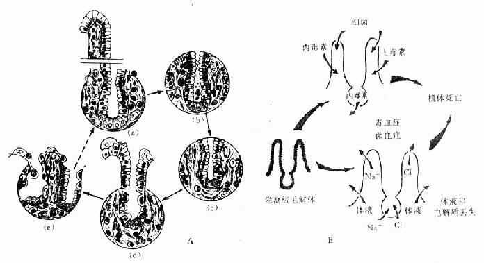 肠型放射病小肠粘膜上皮变化及其后果示意图
