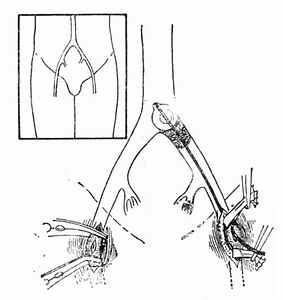 腹主动脉骑跨栓塞自左股总动脉取栓