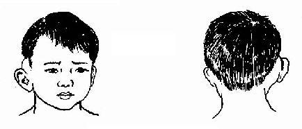 耳后骨膜下脓肿