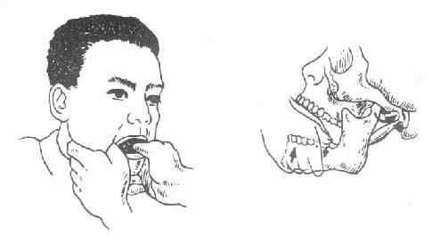 颞颌关节前脱位的复位手法