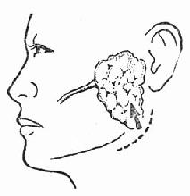 肋腺脓肿切开引流切口在下颌角