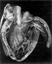 克山病之心脏
