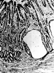 慢性萎缩性胃炎