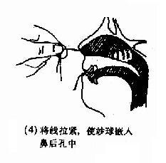 后鼻孔填塞法
