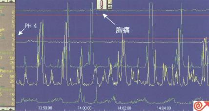 一例食管pH及动力联合检测
