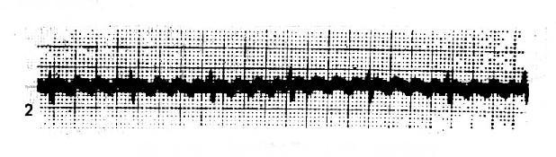 心房扑动(呈4:1传导)心室律规则