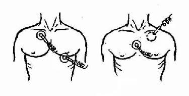 胸外电击除颤电极板位置