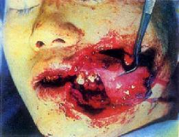 软组织裂伤(左唇、颊部)