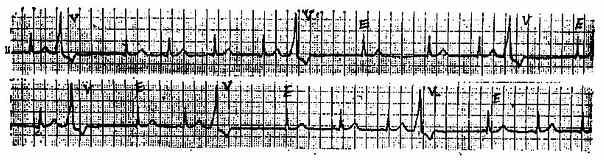 交界性逸搏心电图一例