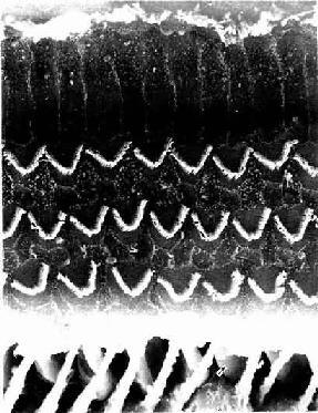 豚鼠螺旋器顶部扫描电镜像