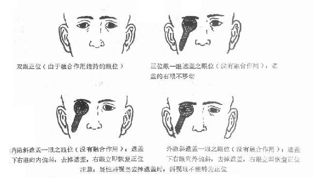 正位眼与隐斜视在一眼被遮盖时的表现