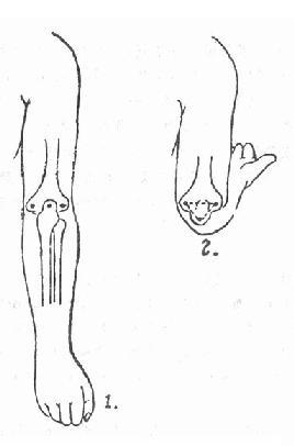 肘后肱骨内、外上髁与尺骨鹰嘴突三点关系